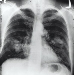 """image of a chest xray"""